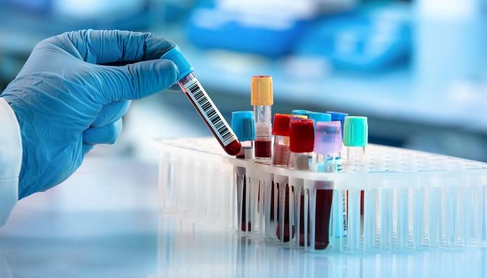 Lymph در آزمایش خون چیست ؟