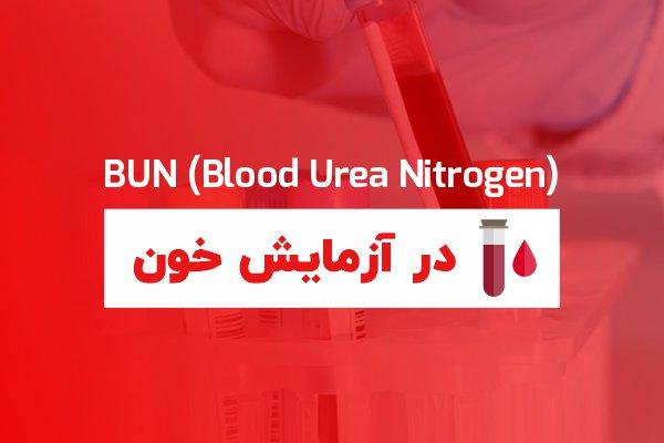 urea در آزمایش خون