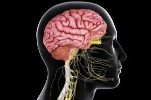 انواع سکته مغزی