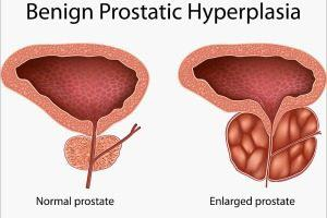 سرطان پروستات یکی از رایج ترین انواع سرطان در مردان است. معمولا سرطان پروستات به آرامی رشد می کند و در ابتدا به غدد پروستات محدود می شود، برخی از انواع سرطان پروستات به آرامی رشد می کنند
