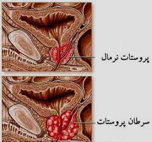 علائم پروستات در مردان و روش های درمان پروستات