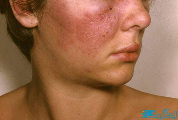 بیماری لوپوس چیست