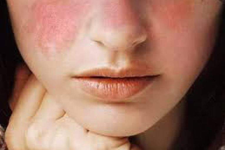 بیماری لوپوس و علائم آن