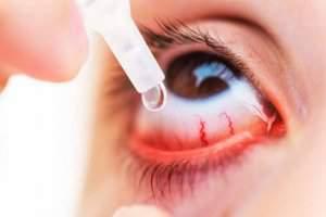 کراتیت یا التهاب قرنیه چیست؟