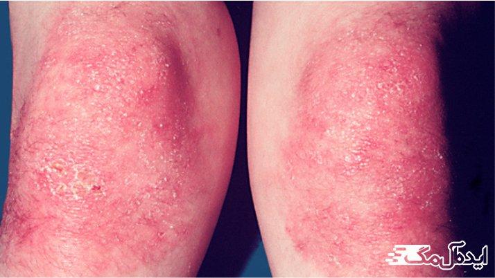 بیماری Dermatomyositis