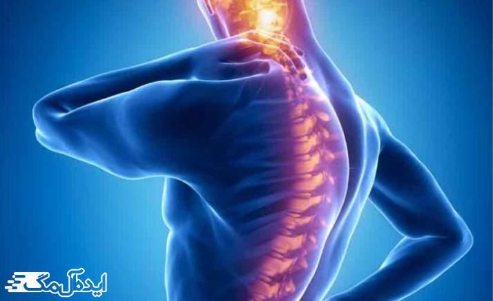 بیماری Fibromyalgia