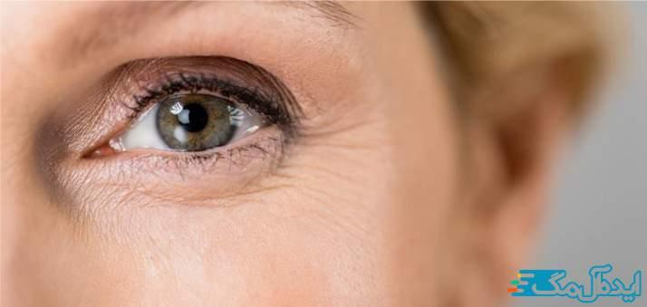 بیماری Glaucoma