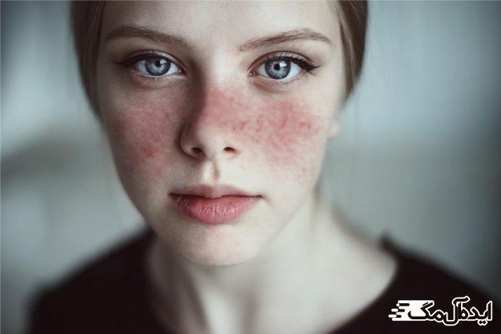 بیماری Lupus