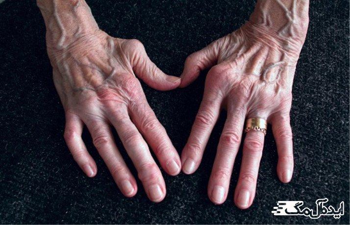 بیماری Rheumatoid Arthritis