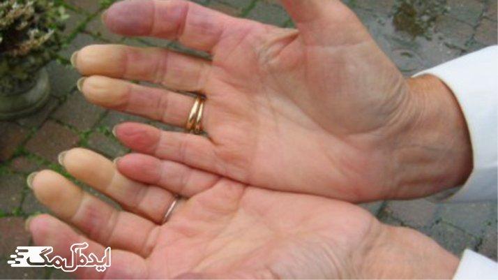 بیماری Scleroderma