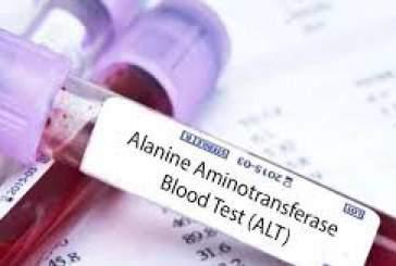 آزمایش خون ALT چیست؟