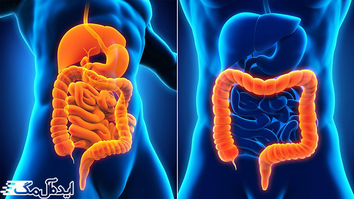 تفاوت بیماری کرون روده با کولیت اولسراتیو