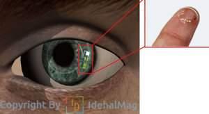 لنز دیابتی