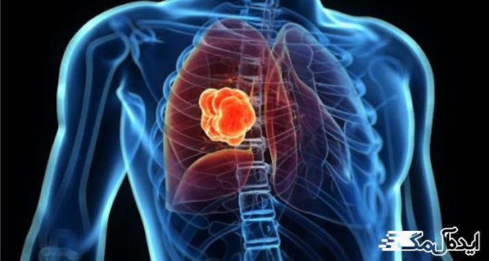 سرطان ریه بدخیم