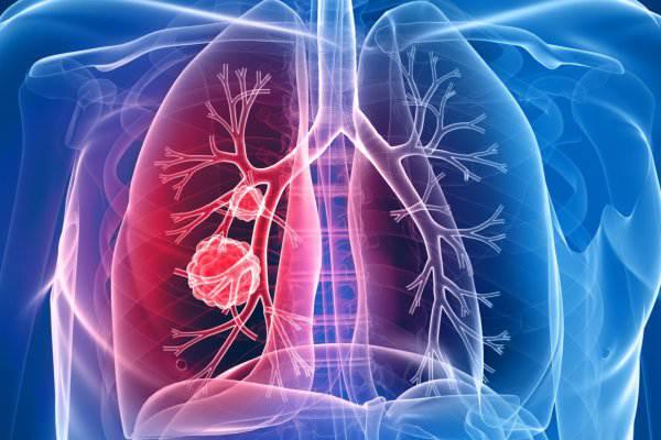 عوامل سرطان ریه