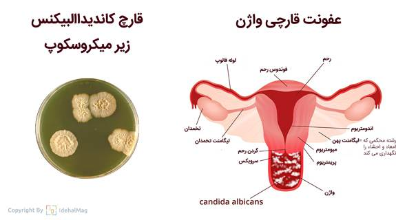 قارچ کاندیداالبیکس عفونت واژن