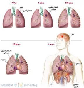 مراحل سرطان ریه