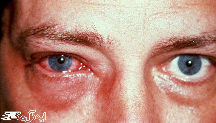 علائم تورم چشم