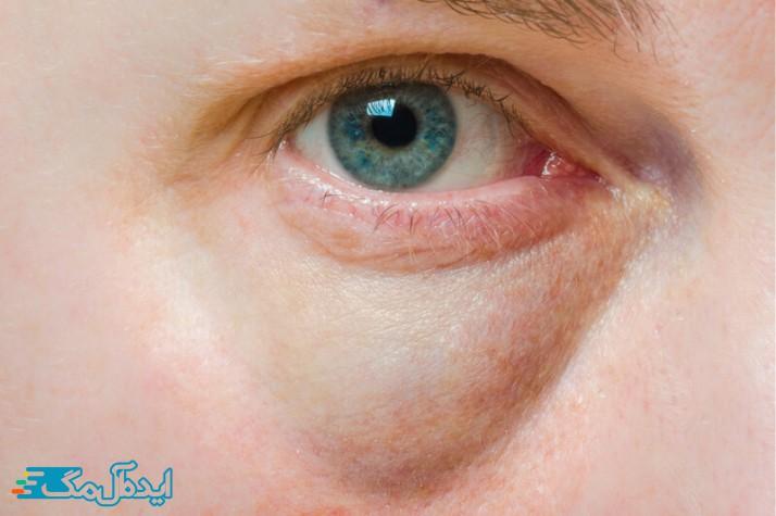 ورم چشم چیست؟