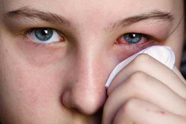 درمان خانگی ورم پلک چشم
