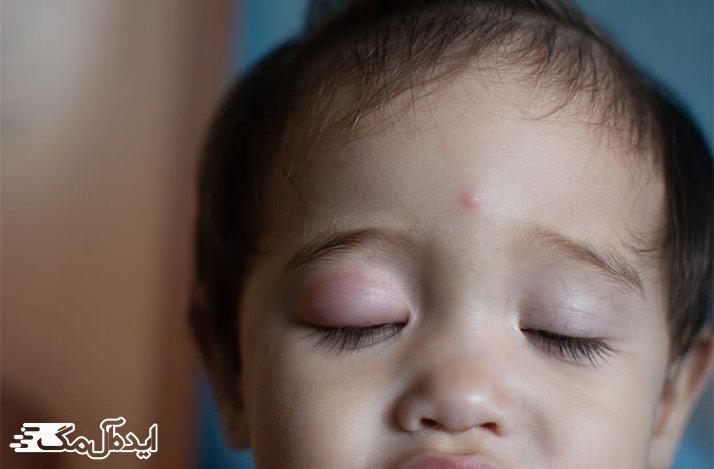 شیر مادر و تاثیر آن روی درمان ورم پلک چشم نوزادان
