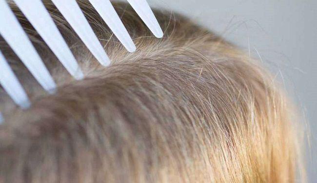 راههای درمان شپش سر
