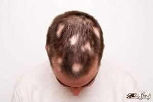 ریزش مو سکه ای چیست و چگونه درمان می شود