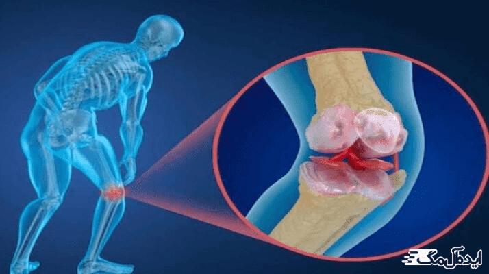 آشنایی با عوارض پوکی استخوان