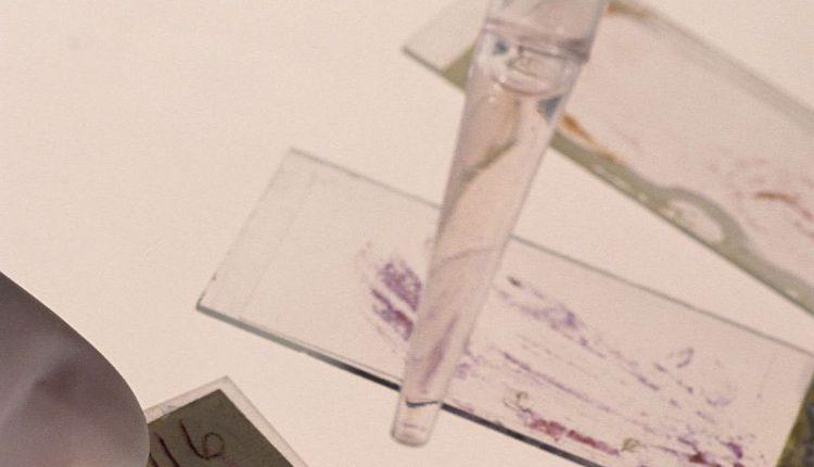 درمان کووید-19 با داروی ابولا
