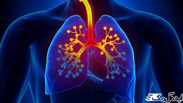 علائم آسم و طبقه بندی این بیماری