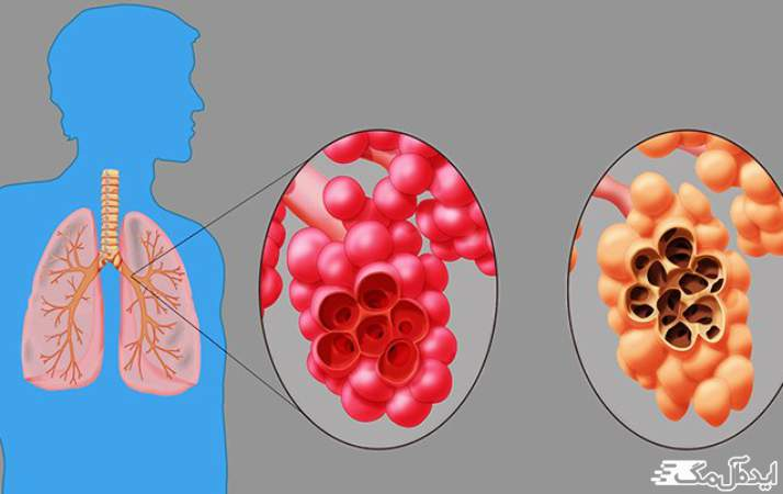 بیماری مزمن ریه ها