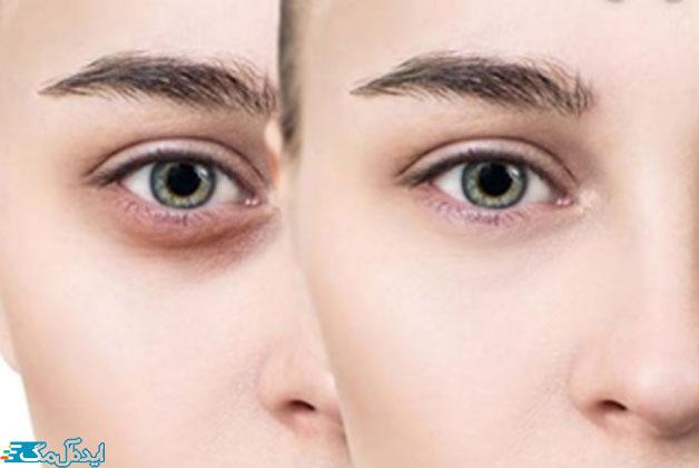 تاثیر-ژنتیک-در-سیاهی-دور-چشم