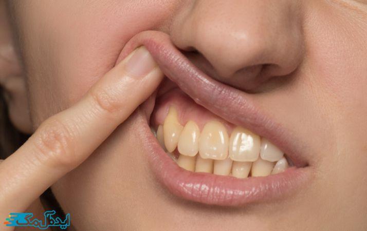 دندان های زرد