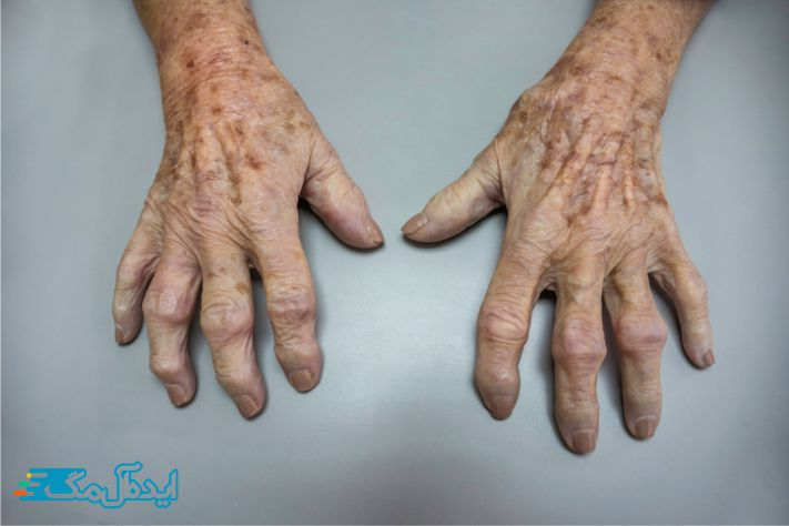 آرتروز دست ها