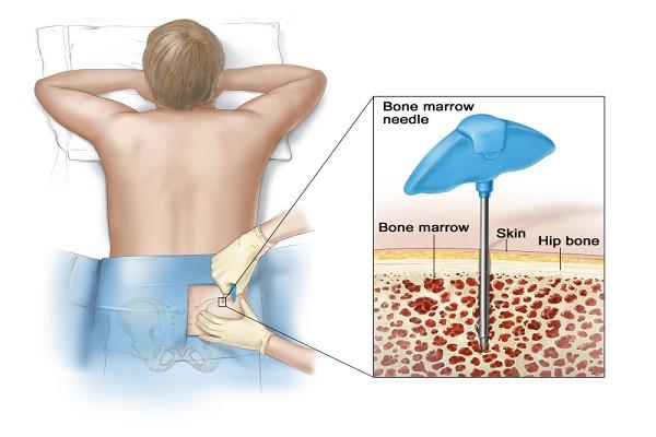 بایوپسی مغز استخوان