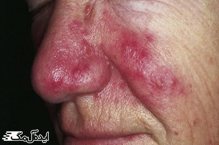 اختلالات پوستی، آکنه روزاسه