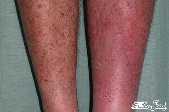 اختلالات پوستی، سلولیت