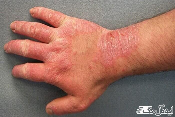 اختلالات پوستی درماتیت تماسی