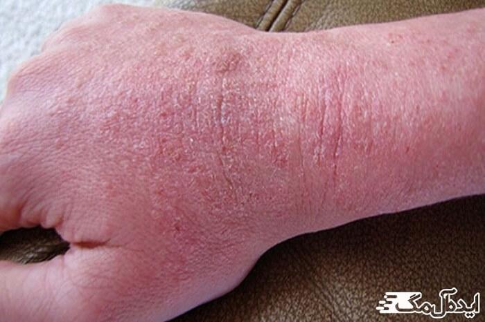 اختلالات پوستی، اگزما