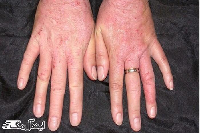 اختلالات پوستی، حساسیت به لاتکس