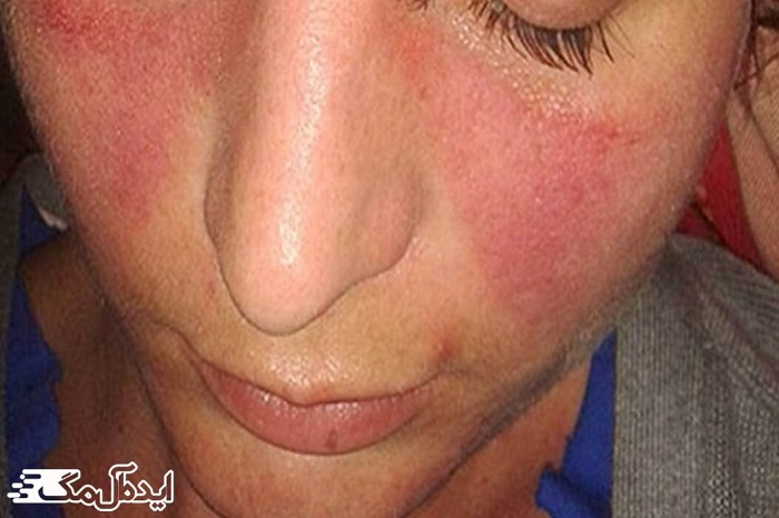 اختلالات پوستی لوپوس
