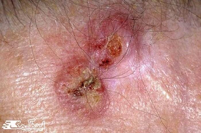 اختلالات پوستی، سرطان سلول سنگفرشی