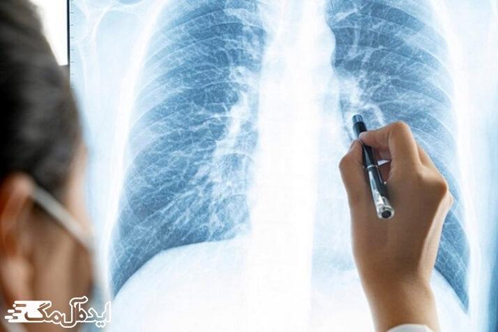 ریههای افرادی که سیگار میکشند ممکن است حاوی گیرندههایی بیشتری باشد که کروناویروس جدید برای حمله به سلولها استفاده میکند.