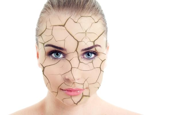 پوست دهیدراته یا کم آب