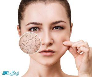 مشخصات و ویژگی های پوست دهیدراته