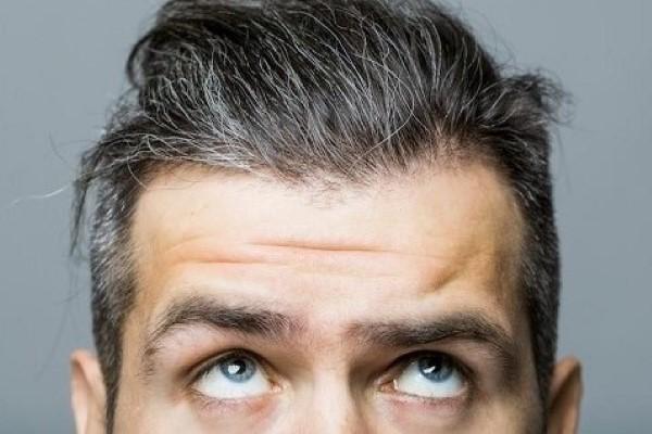 علت سفید شدن مو در جوانی چیست