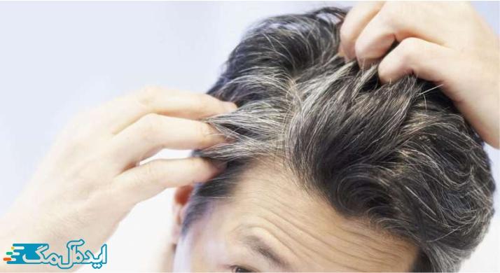 سفید شدن مو در سنین جوانی
