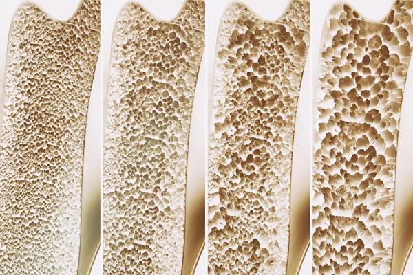 متاستاز استخوانی، سرطانی است که در یک ناحیه شروع میشود و سپس به استخوان گسترش مییابد.