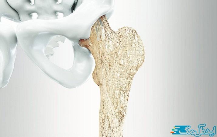 سرطانی که به استخوان سرایت میکند، میتواند استخوان را تضعیف کرده و خطر شکستگی را افزایش دهد.