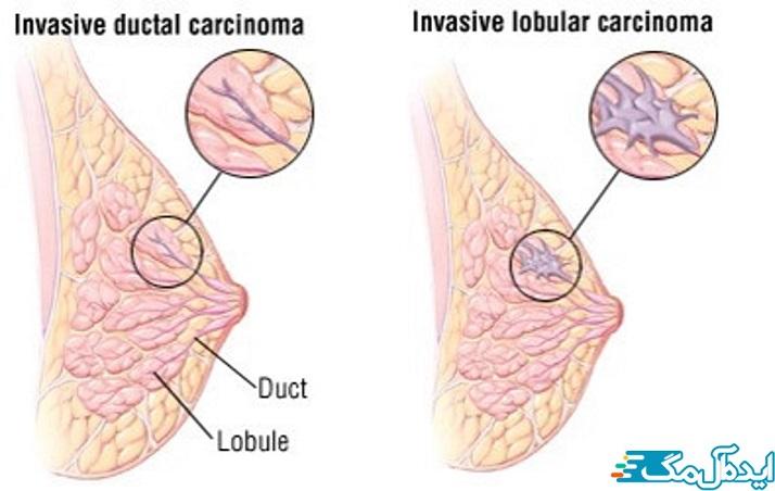 سرطان پستان رشد غیرقابل کنترل سلولهای غیر طبیعی است